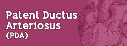 Congratulate, what Ductus arteriosus patent adult