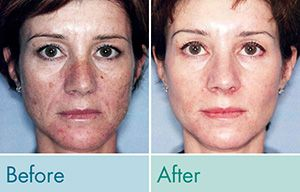 Undo the signs of aging with Triniti Skin Series.