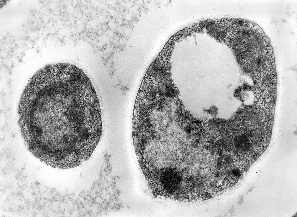 Células eucariontes do Reino Fungi