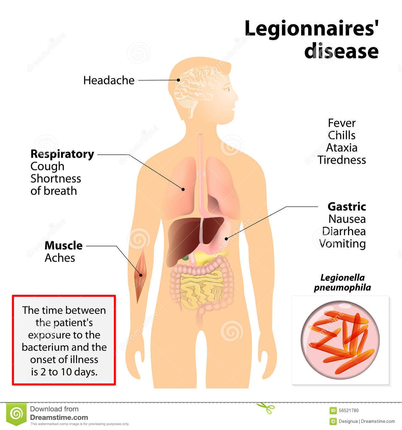 Legionnaires Disease Legionellosis Legion Fever Signs Symptoms