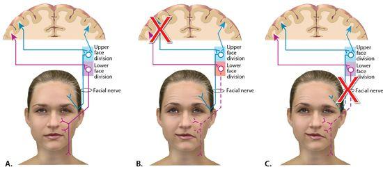 Peripheral facial nerve palsy, ffm porn tubes