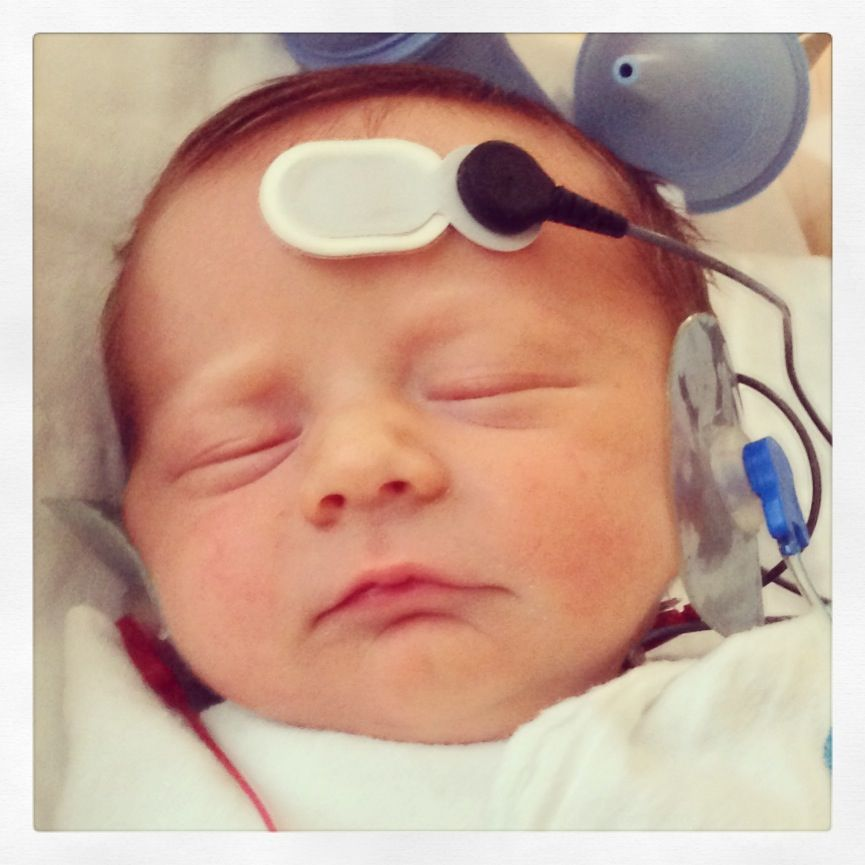 Nephews newborn hearing screen #abr #audiology #ears. In honor of ...