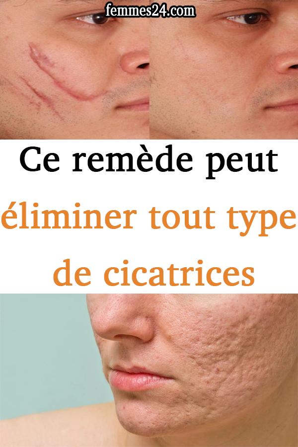 Ce remède peut éliminer tous les types de cicatrices …   – la beauté