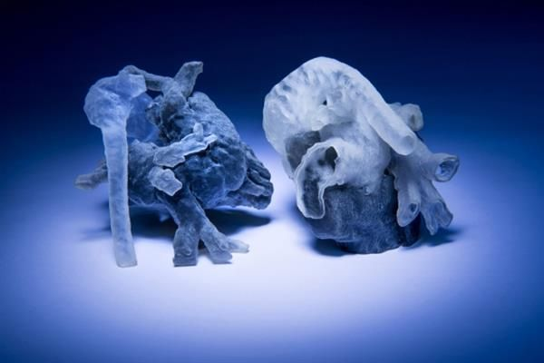 MIT's new system can convert MRI scans into 3D printed medical models in a few hours
