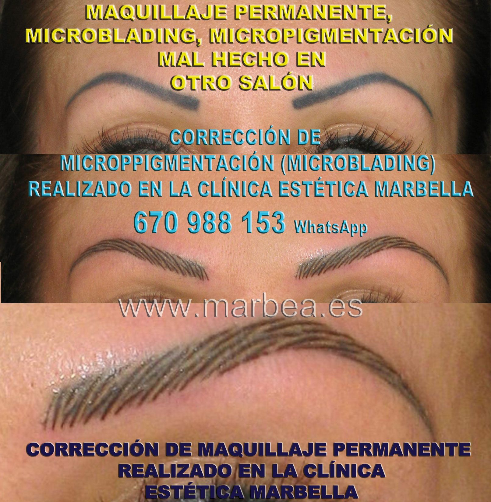 A Donde Corregir Micropigmentacion Cejas Mal Tatuadas En Marbella