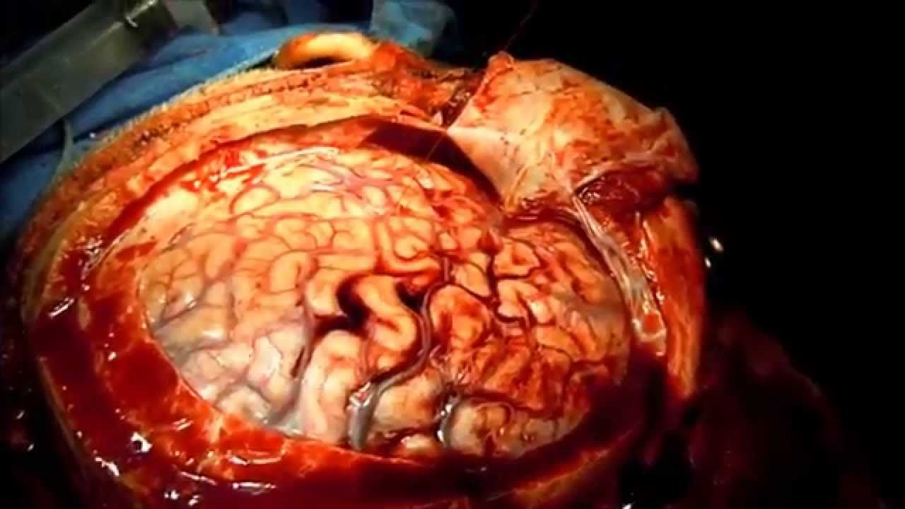 Acute Subdural Hematoma Operation. Awesome! | Medical | Pinterest ...