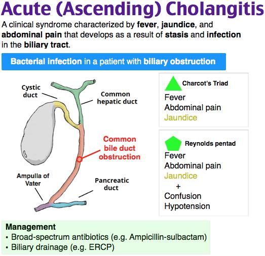 Acute Ascending Cholangitis  GI Illnesses and Disorders