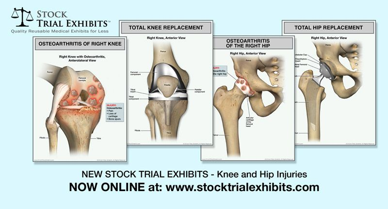Knee Osteoarthritis And Hip Fracture Injuries Stock Exhibits
