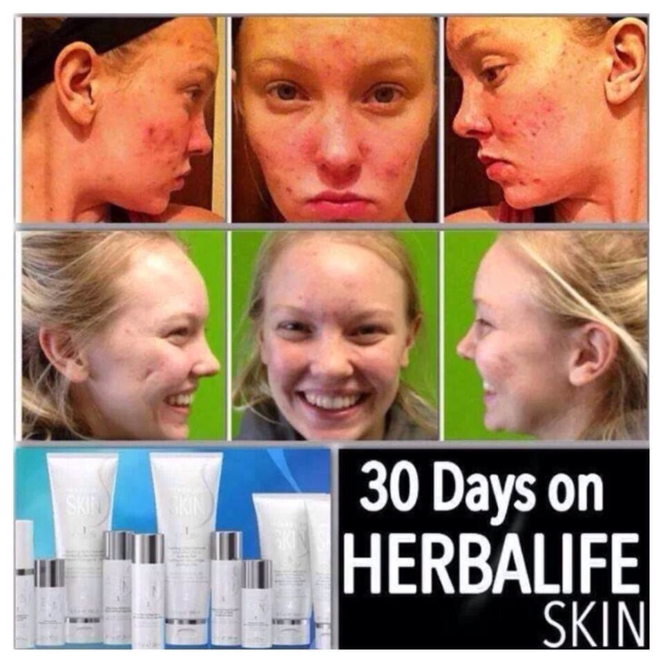 Skincare Skin Beauty Skin Cleanser Products Acne Kits Herbalife