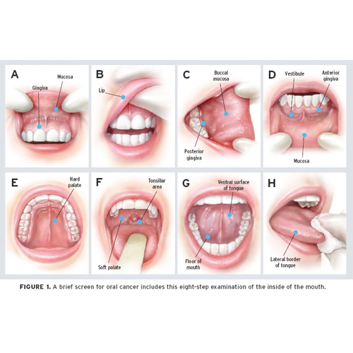 mouth cancer refers to cancer that develops in any of the parts, Cephalic Vein