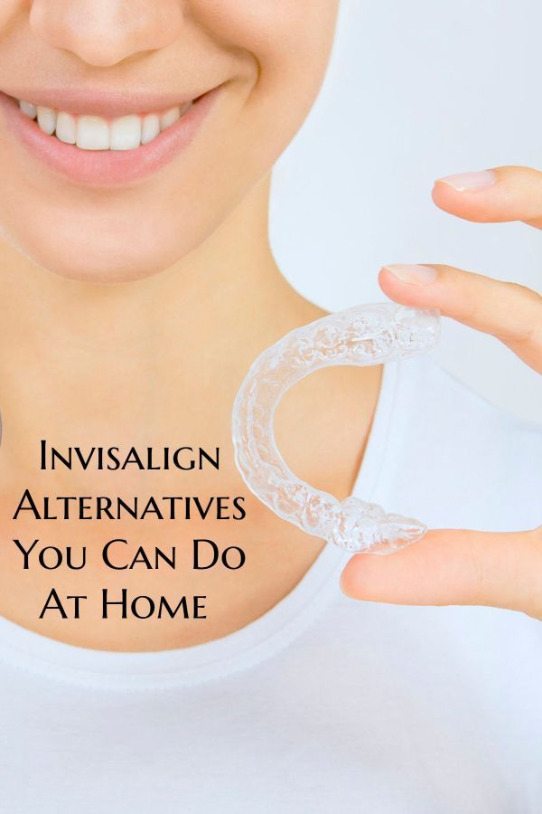 Invisalign Alternatives That Let You Make Payments - Shopping Kim