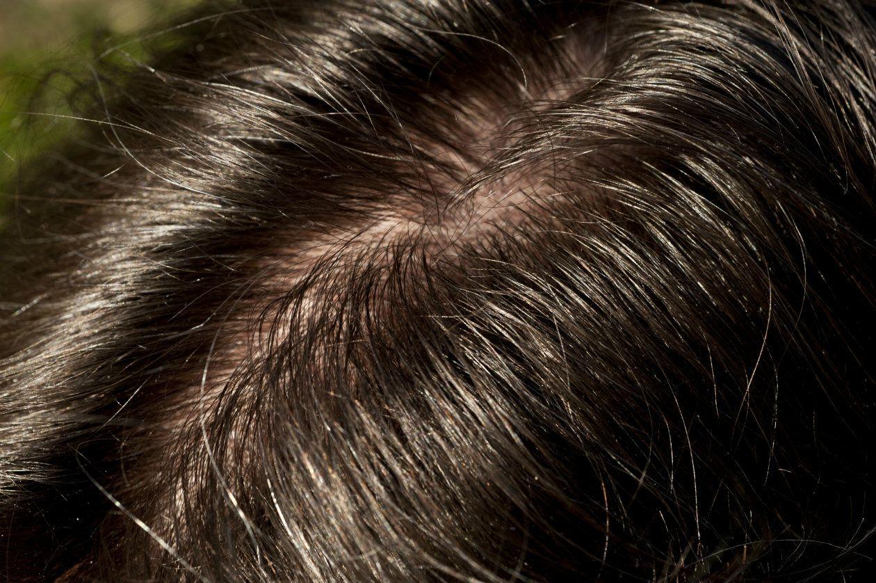 7 cosas que debes saber sobre el cabello graso