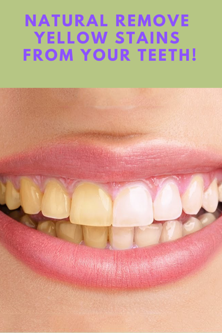 453865d4401ff421cc8cfdfb1cbef708 - How To Get Rid Of White Stain On Teeth
