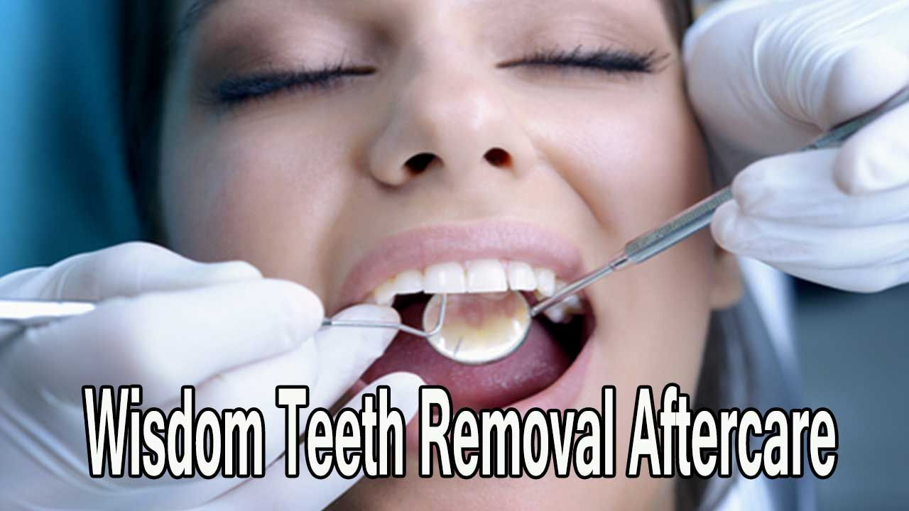 Wisdom Teeth Removal Aftercare Tips and Instructions http