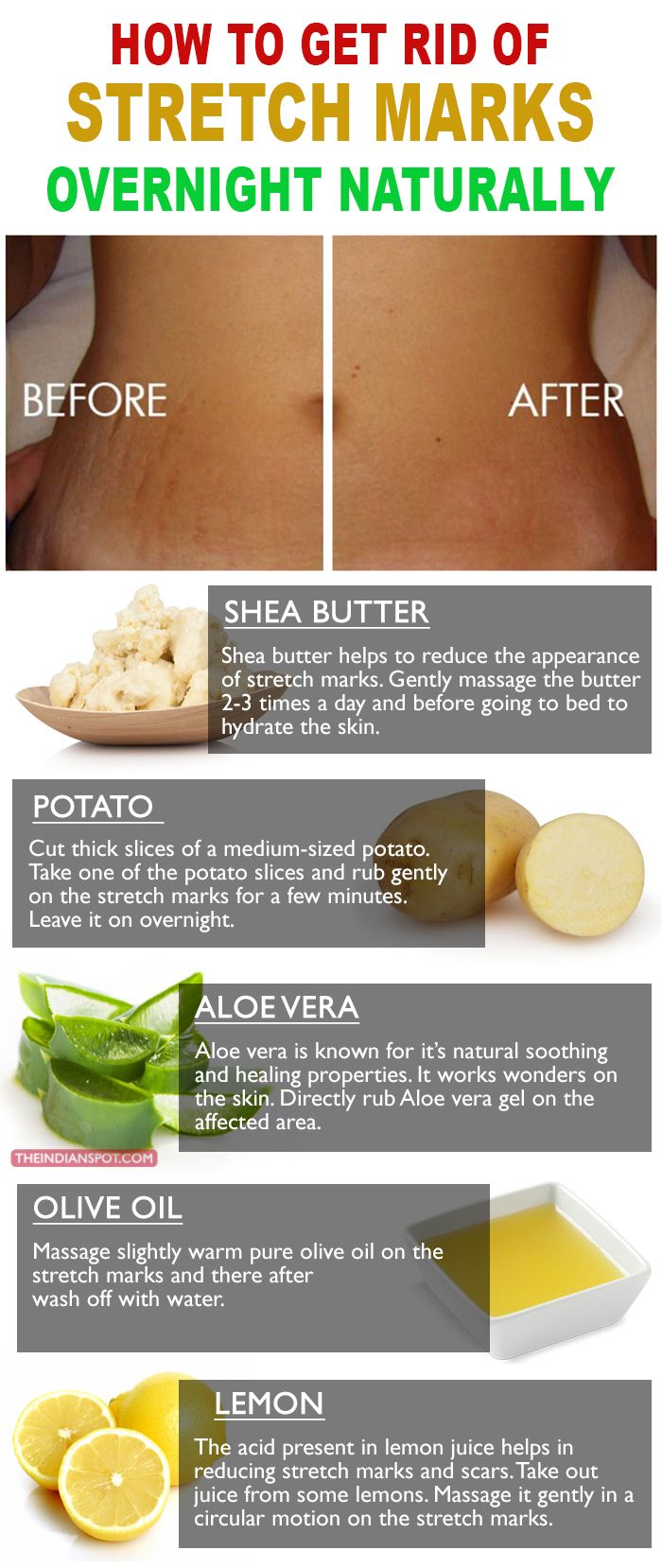 The best way to remove and get rid of stretch marks