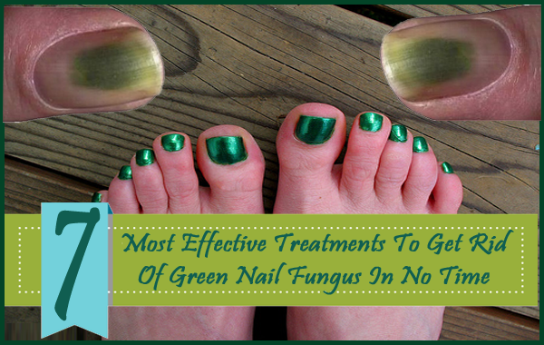 Pin On Toe Nail Fungus Treatment