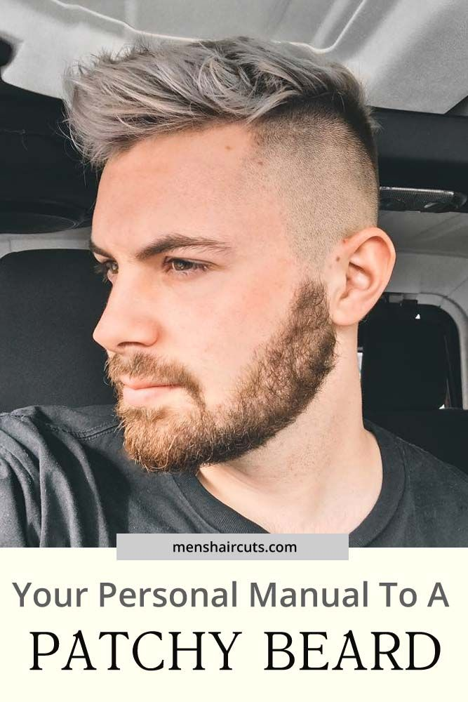 Photo of Wie man mit einem fleckigen Bart umgeht
