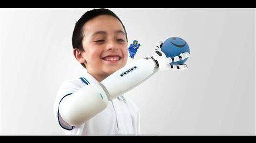 Diseñan una prótesis infantil compatible con Legos