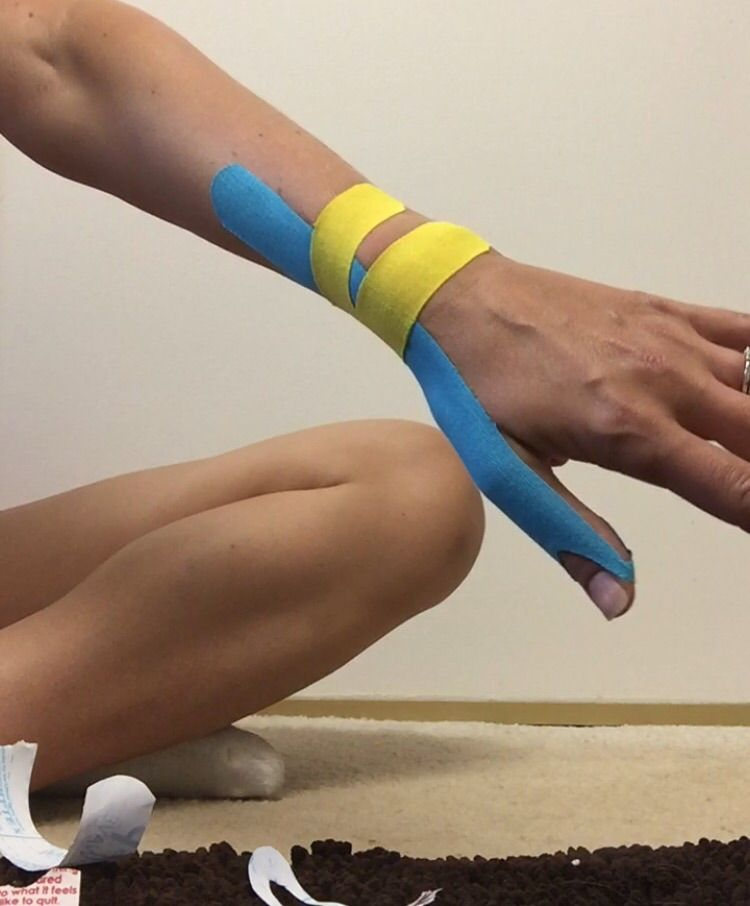 Mommy Thumb Kinesiotaping Crossfit Pinterest Therapy Physical