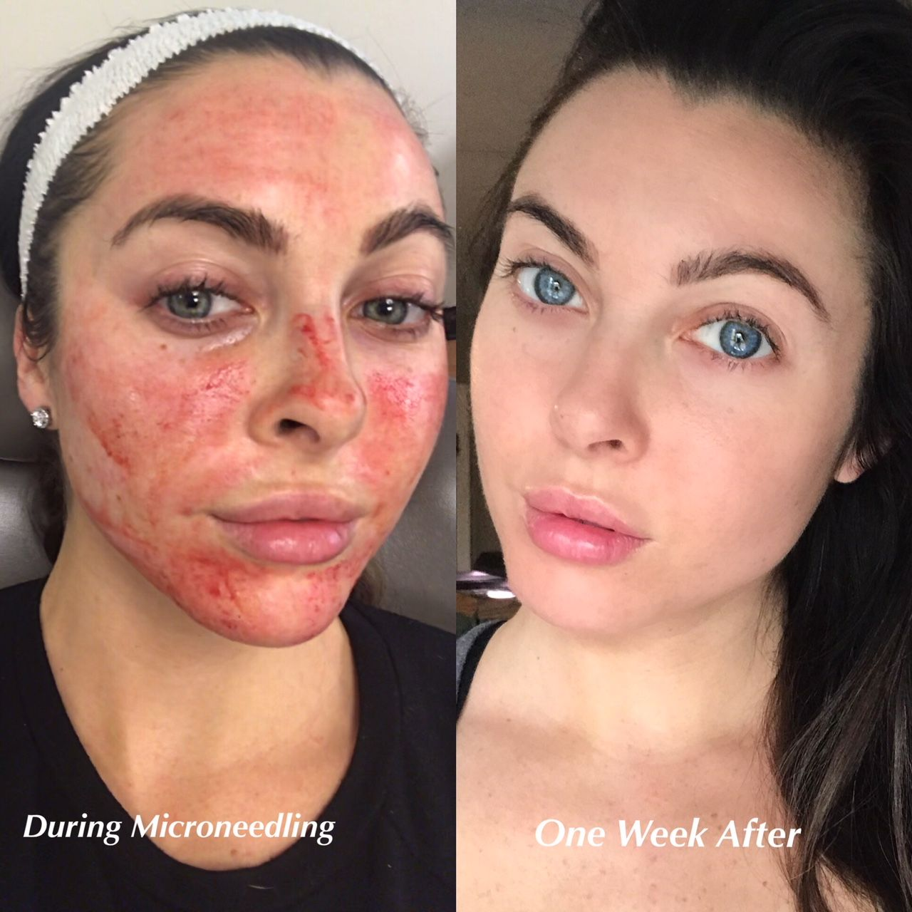 My Microneedling with PRP Experience (Vampire Facial) is part of Microneedling - skincare expe