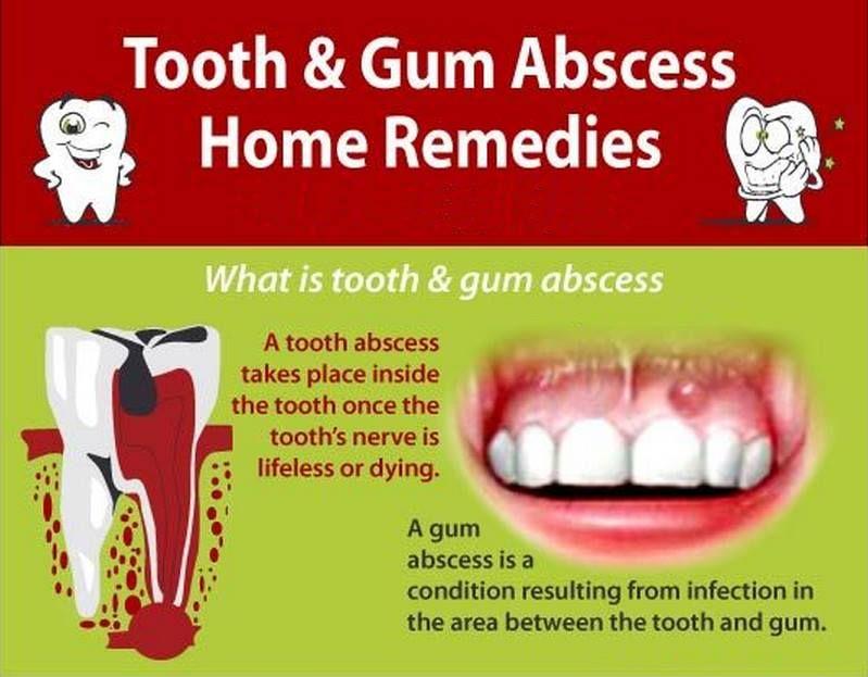 dental #dentalcare | Tooth & Gum Abscess Home Remedies