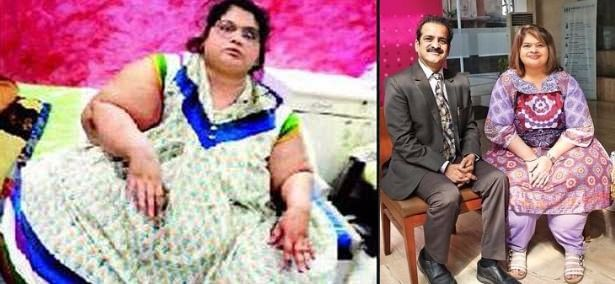 Amita 'Indian Eman' Loss 125kg weight after Bariatric
