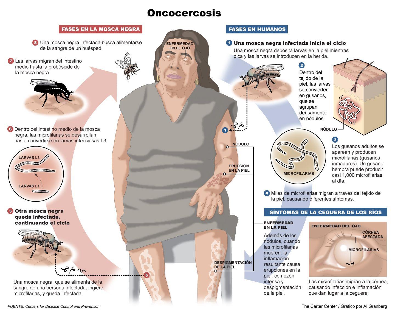 Ciclo de la Oncocercosis, en el humano y en la mosca.   Salud ...