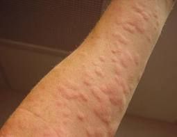 Hives Treatment - Finally…A Breakthrough Discovery Cure