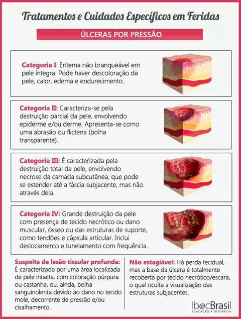 Classificação das úlceras por pressão
