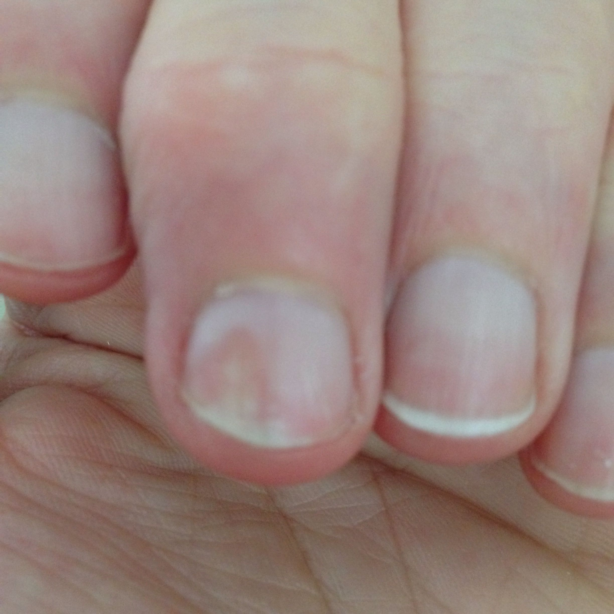 Nail Pulling Away From Nail Bed Psoriatic Arthritis With Images