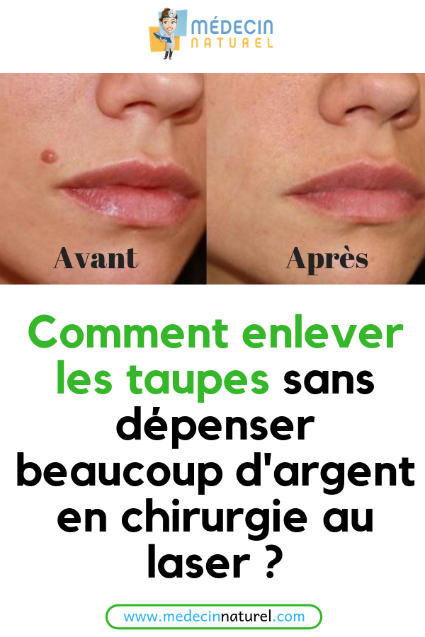 Pin On Astuces Beauté
