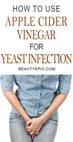 Does Apple Cider Vinegar Cure A Yeast Infection? | Apple