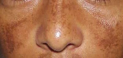 Assuntos e Achados da Scheila: Tratamentos caseiros para reduzir o melasma