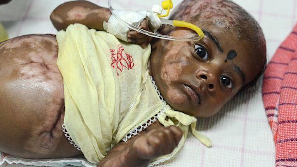 Bebê indiano entra em combustão espontaneamente pela quarta vez