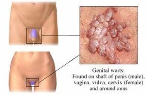Genital warts oral sex