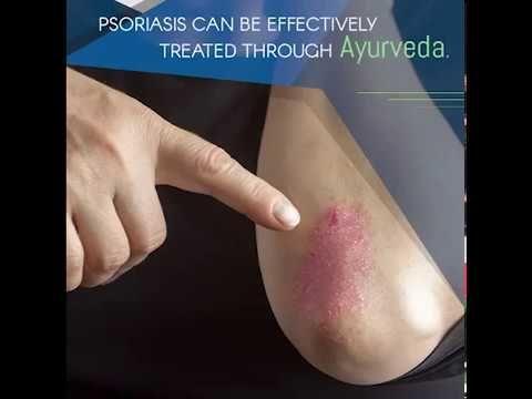 الصدفية علاج الصدفية مرض الصدفية الصدفيه الصدفية وعلاجها علاج الصدفية بالاعشاب صدفية الجلد علاج الصدفية بالعسل صدفية ال Psoriasis Ayurveda Ayurvedic