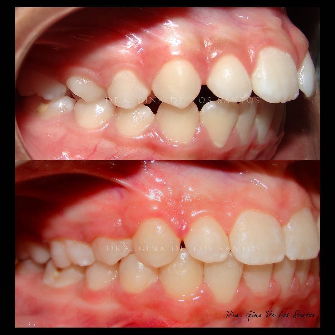 Dra Gina De Los Santos On Instagram Antes Y Despues Before After Orthodls Ortodoncia Orthodontics Oral Surgery Dental Assistant