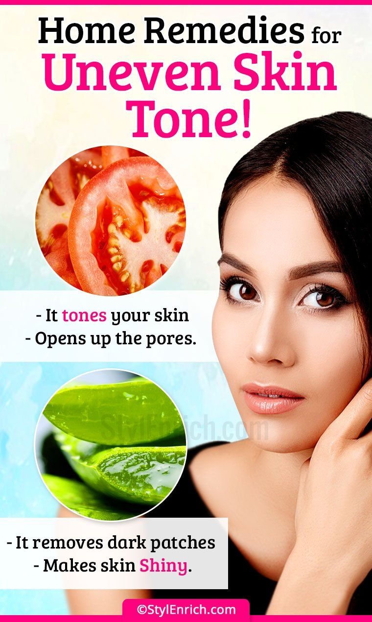 Home Remedies To Fix Uneven Skin Tone   Uneven skin