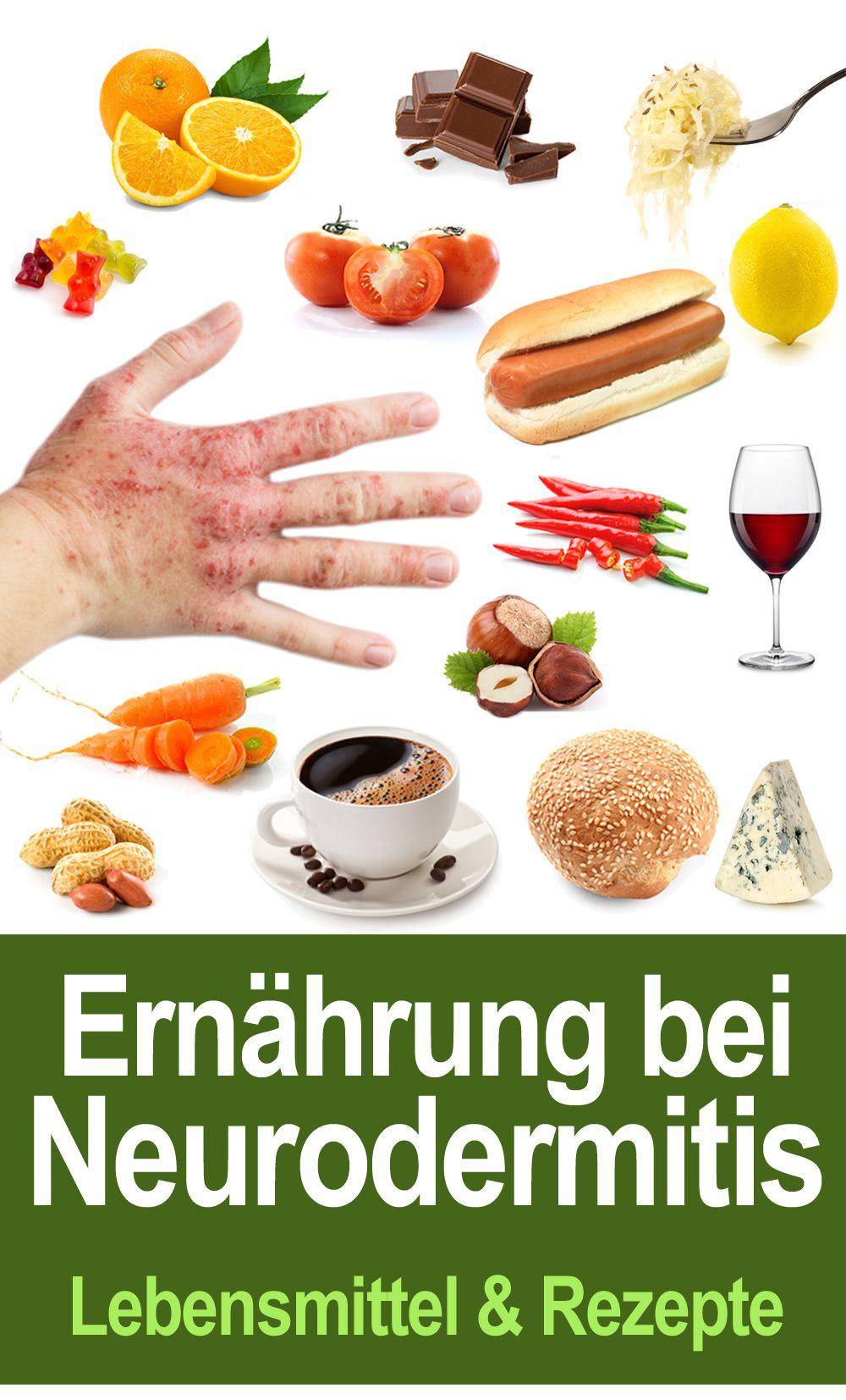 Photo of Neurodermitis Ernährung