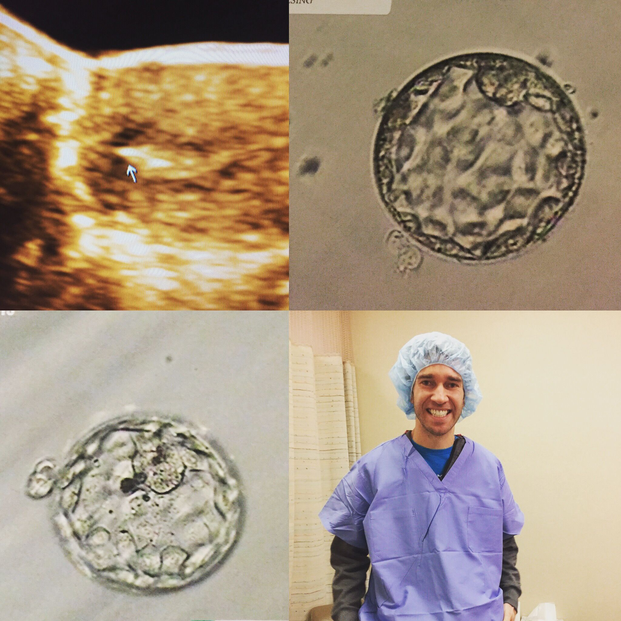 2DP5DT – Two Days Past 5 Day Transfer | IVF and Jake Babies