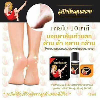 (Ad) Cracked Heels Repair Dry Feet Crack Callus Corn Rough Skin Results 10 Mins Scrub #crackedskinonheels (Ad) Cracked Heels Repair Dry Feet Crack Callus Corn Rough Skin Results 10 Mins Scrub #HardSkinBakingSoda #crackedskinonheels (Ad) Cracked Heels Repair Dry Feet Crack Callus Corn Rough Skin Results 10 Mins Scrub #crackedskinonheels (Ad) Cracked Heels Repair Dry Feet Crack Callus Corn Rough Skin Results 10 Mins Scrub #HardSkinBakingSoda #crackedskinonheels
