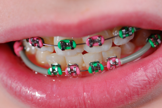 green and pink braces Braces food, Braces friendly