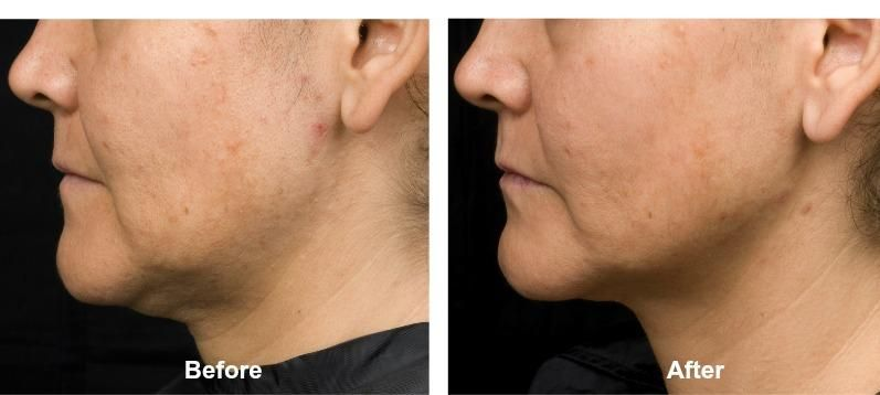 Contour your jawline without surgery! Thermage skin tightening