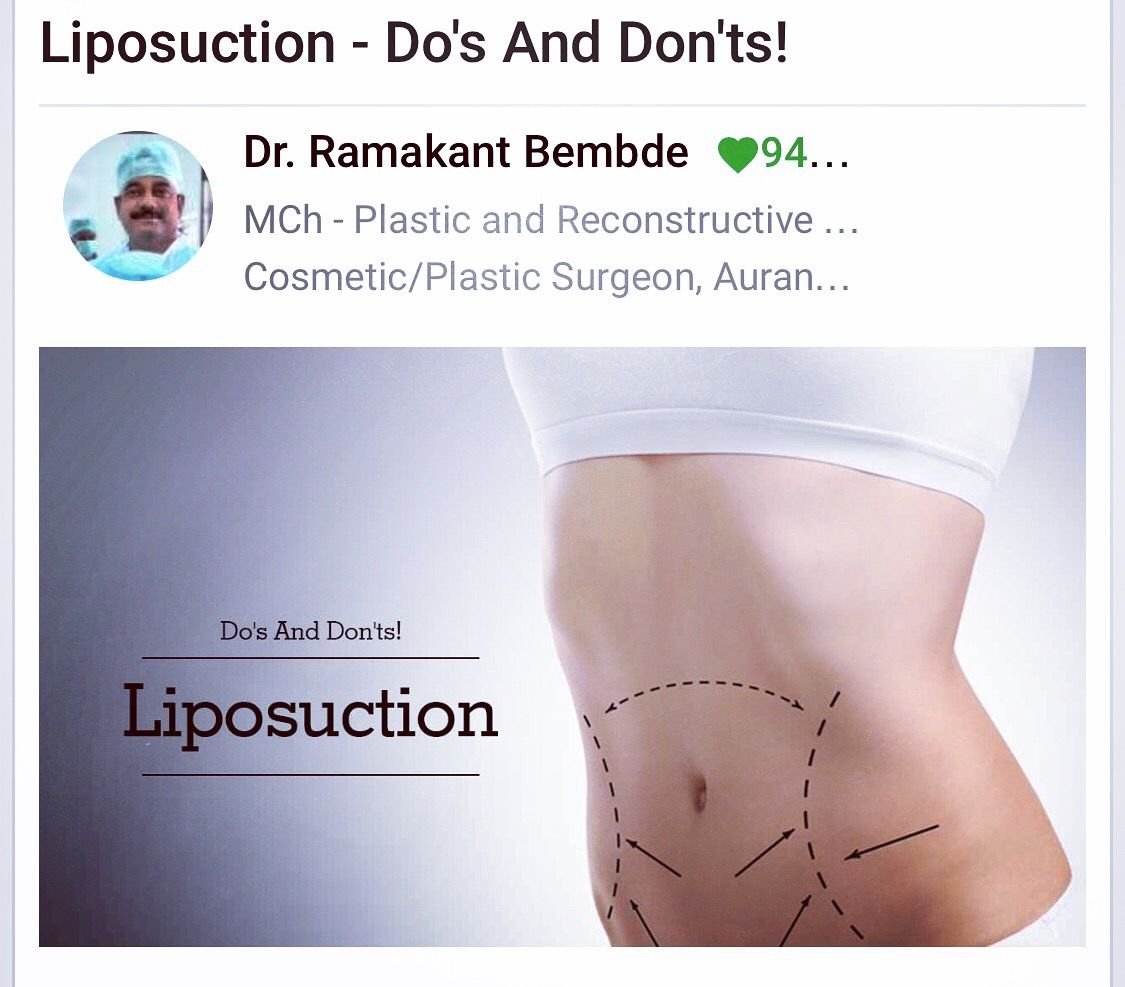 Surgery Center, Liposuction, Plastic Surgery, Cher Plastic Surgery