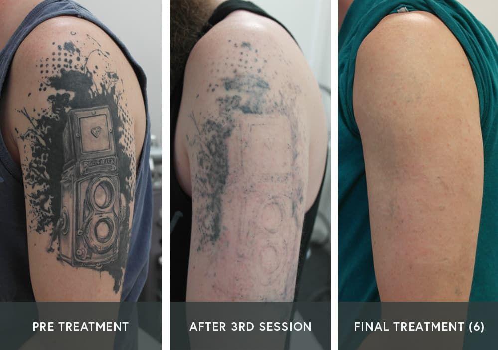Picosure Tattoo Removal Uk Andrea Catton Laser Clinic Burnley Picosure Tattoo Removal Tattoo Removal Tattoos