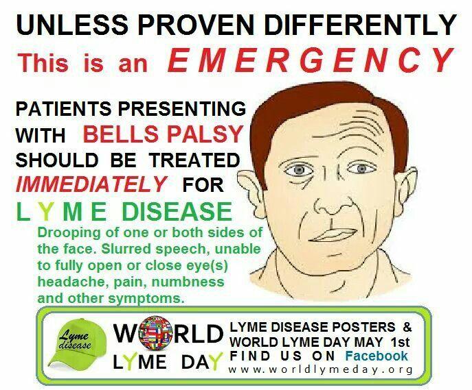 Bells Palsy Lyme Disease Awareness Pinterest Lyme