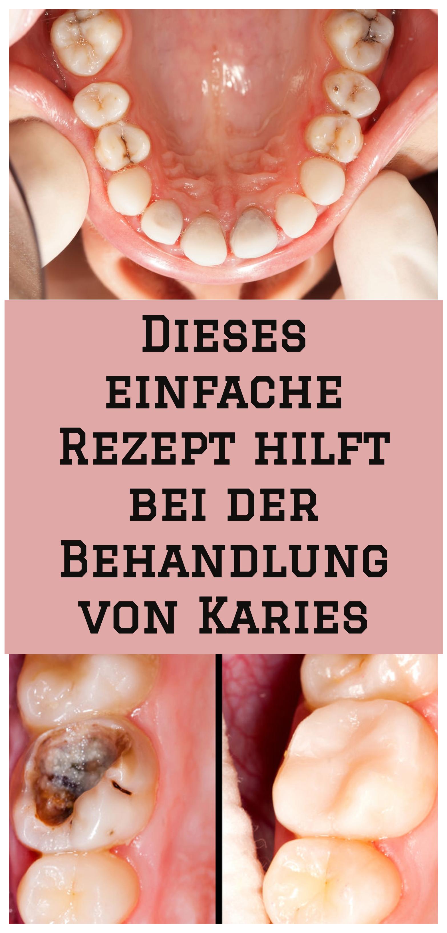 Zähne nachwachsen lassen schilddrüse
