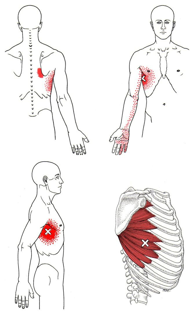 Serratus Anterior | The Trigger Point & Referred Pain Guide ...