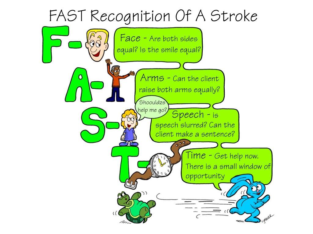 FAST recognition of a stroke | Nursing Life | Pinterest | Study ...