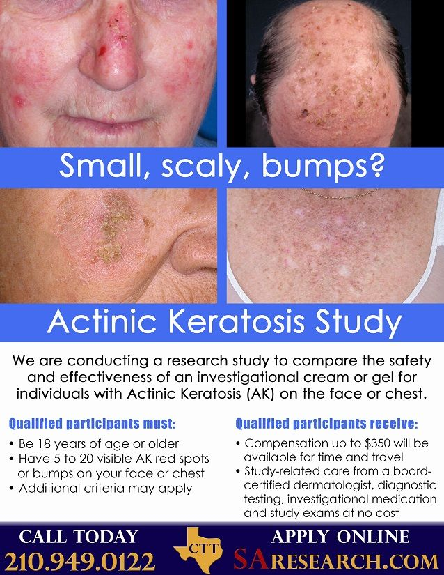 Research study for Actinic Keratosis (AK)! Apply today